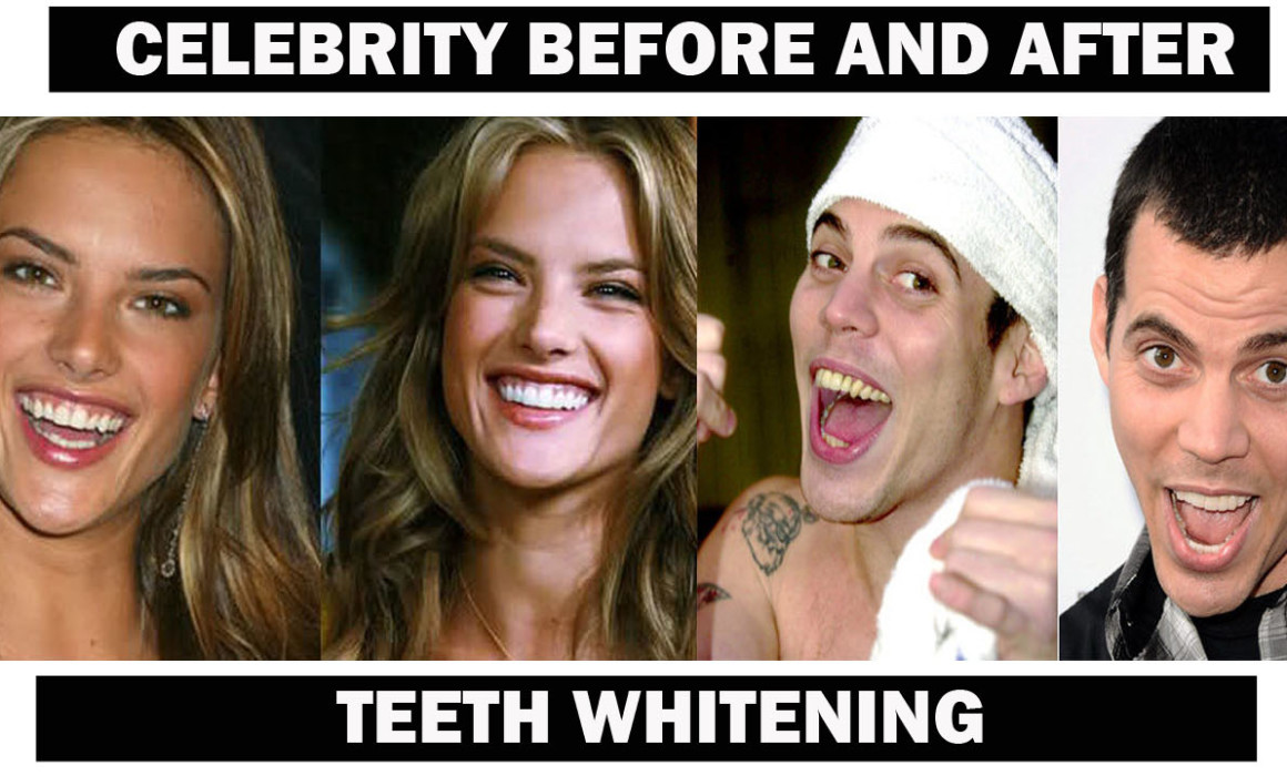 Celeb before and after teeth whitening