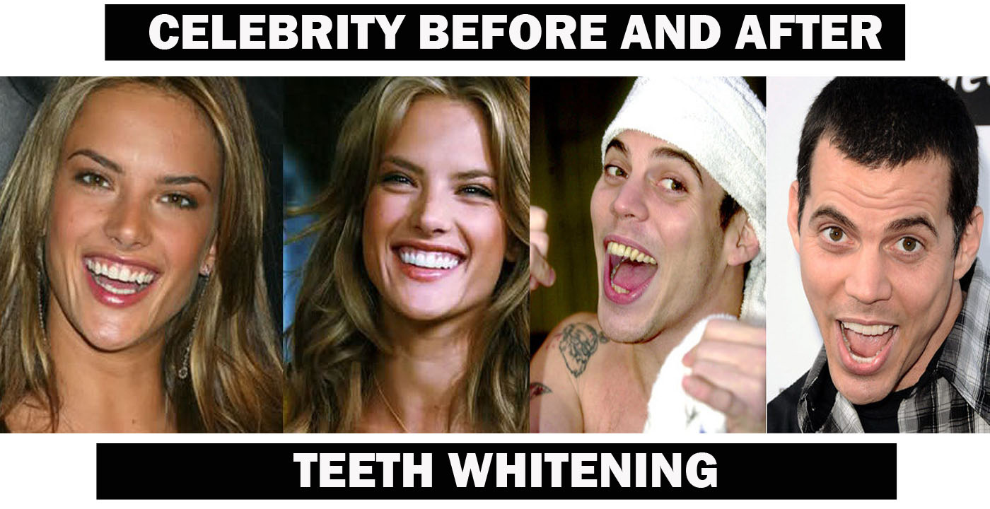 CELEBRITY SEXY SMILE TEETH WHITENING::WHITE SMILE